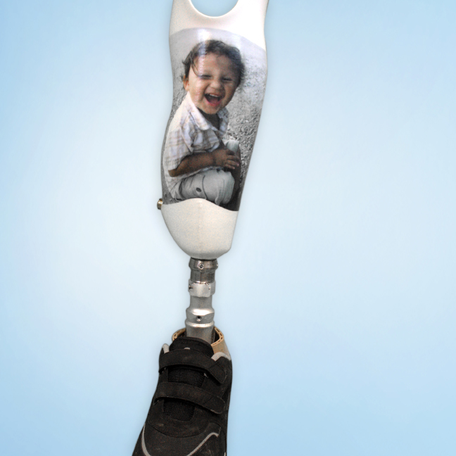 Kid_Pic_Prosthetic_1 by Anderson Ortho