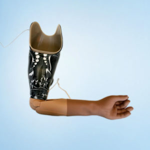 Myolectric_Arm_2 by Anderson Ortho