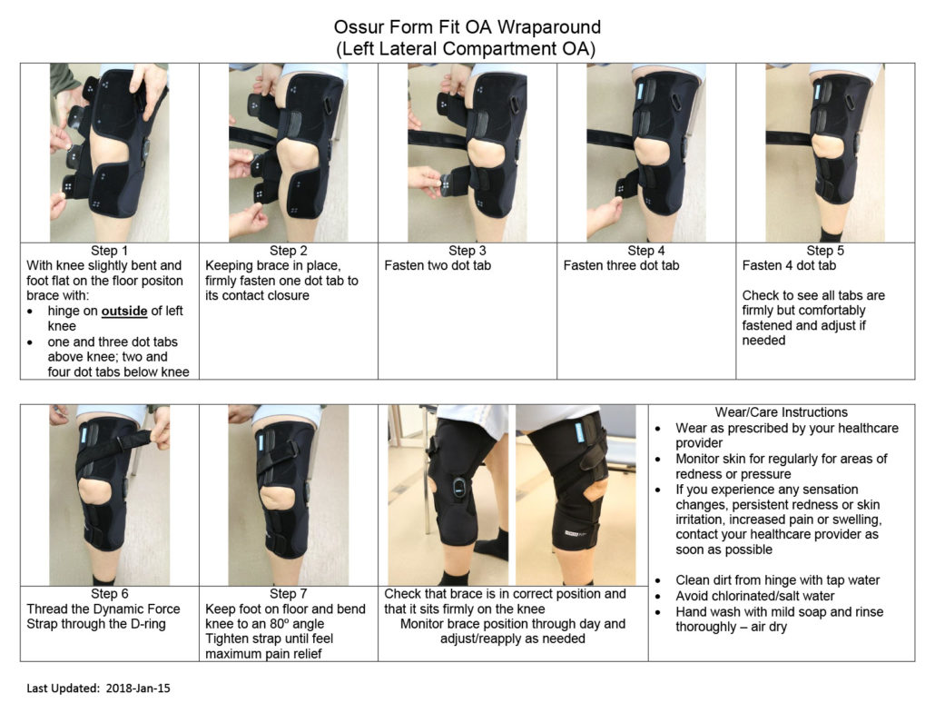 OSSÜR Form Fit OA Wraparound, left lateral compartment OA