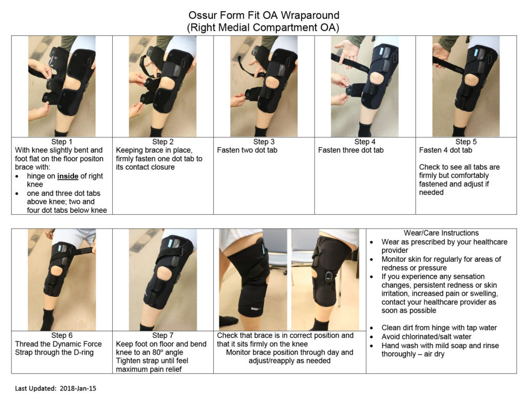 OSSÜR Form Fit OA Wraparound, right medial compartment OA